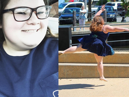 15-letnia baletnica XXL
